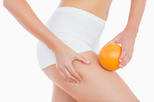 What is Cellulite, What Causes It and How to Make it Go Away